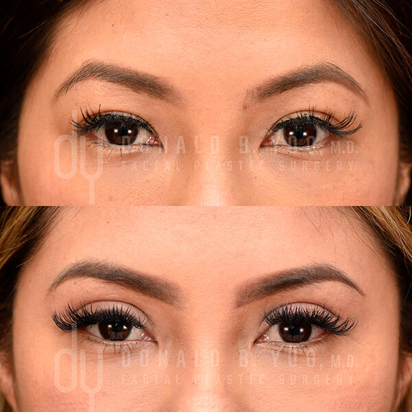 2nd before and after photo of Asian Blepharoplasty results