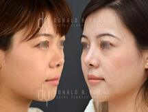 Asian rhinoplasty surgical procedure (before and after)