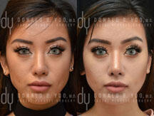 Revision Asian Rhinoplasty procedure