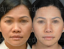surgical Asian rhinoplasty with rib cartilage and diced cartilage fascia (DCF)