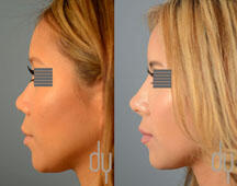 surgical Asian rhinoplasty with rib cartilage and diced cartilage fascia